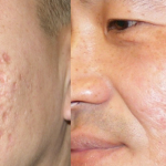 How can you Treat Acne Scarring