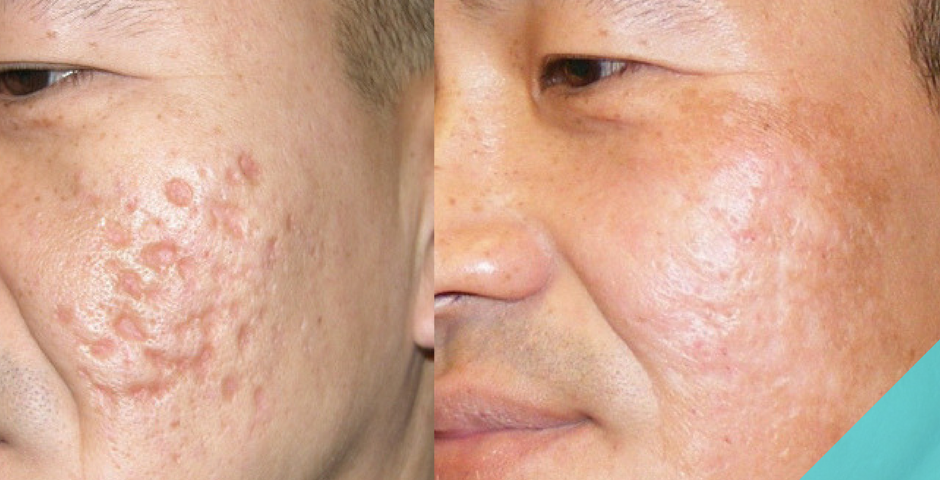 How Can You Treat Acne Scarring Grape Track